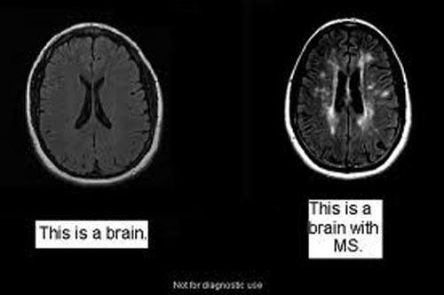 sclerosi-multipla1